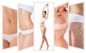 Ästhetisch-Plastische-Chirurgie mit narbenarmen, endoskopischen Methoden