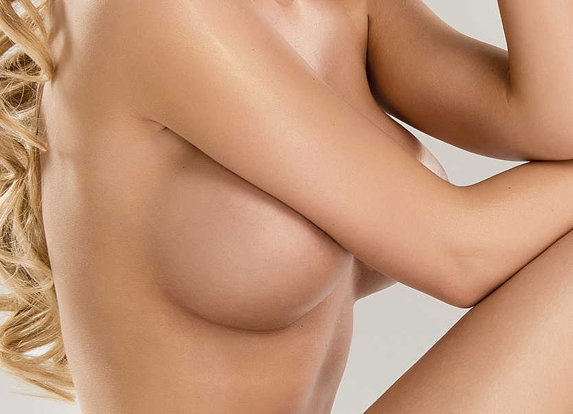 3d Bruststraffung innere BH, keine vertikale Narbe
