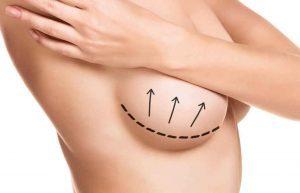 Brustrevision, Brustvergroesserung innerer BH
