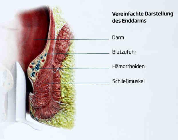 Anatomie von Enddarm und Haemorrhoiden