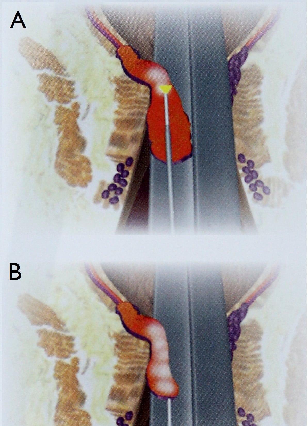 LHP- Laser Haemorrhoiden Therapie Schritt für Schritt