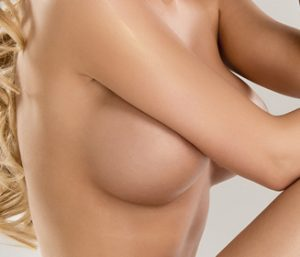 3D Bruststraffung ohne vertikale Narbe,Brustvergrößerung-Bruststraffung-3d Dr.Haffner Koeln