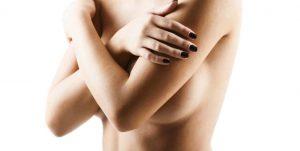 3d Bruststraffung, mastopexie, brust straffen, ohne op, ohne narbe, brustraffung ohne vertikale narbe, köln, dr.haffner, bruststraffung in köln, bruststraffung nrw, bruststraffung preise, bruststraffung vorher-nachher